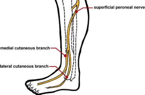 Superficial peroneal nerve injury in a professional runner